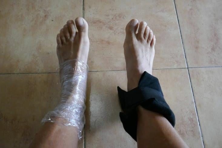 A gauche, le tendon d'Achille et à droite l'entorse ....