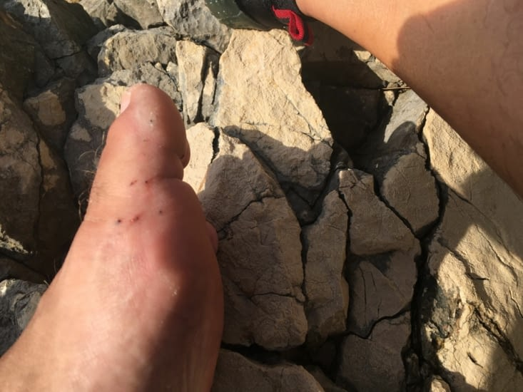 Sea urchin thorn.. My foot remembers it!